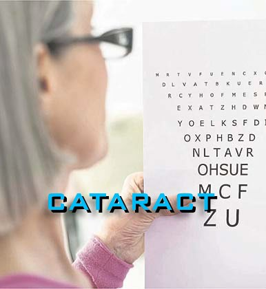 2-cataract